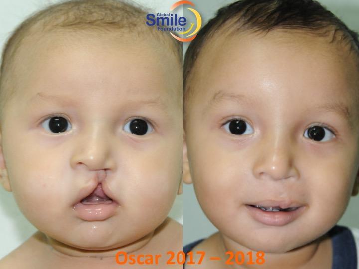 Help children like Oscar!