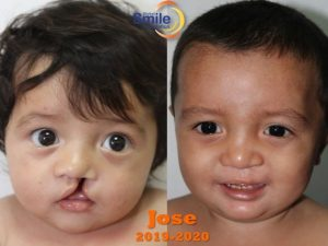 Healthy Smiles in San Salvador